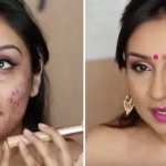 Here's the life-changing makeup tutorial for anyone with acne