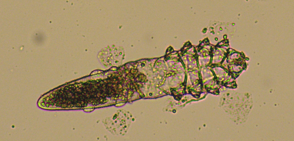 A microscopic image shows a worm-like organism with a long end, eight tiny legs in front and a small head.