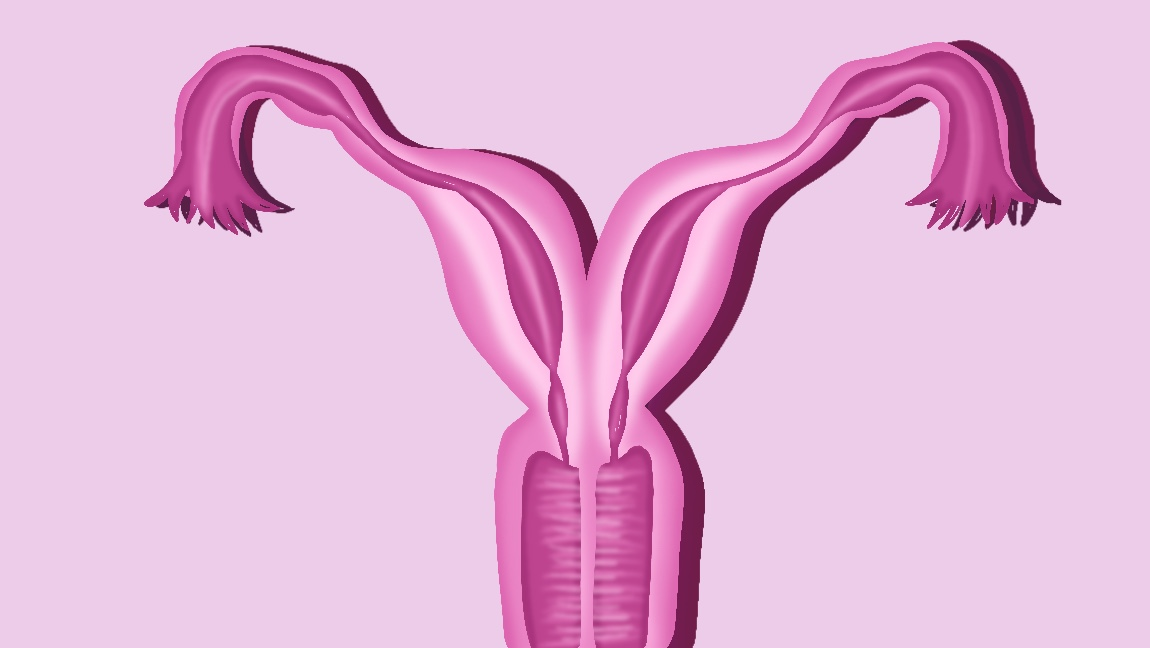 A basic illustration of uterus didelphys.